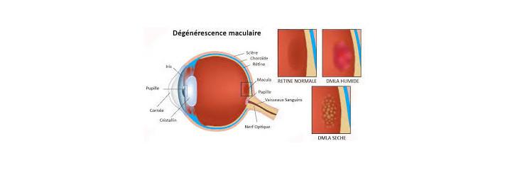 DMLA Dégénérescence masculaire